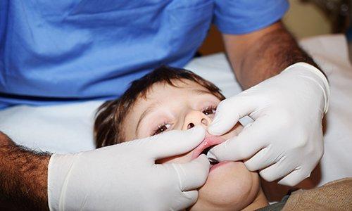 due mani che applicano pressione al palato di un bambino per terapia manuale