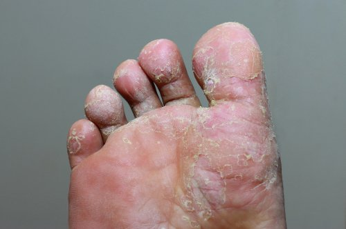 verruca athlete s foot)