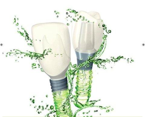 impianti dentali straumann