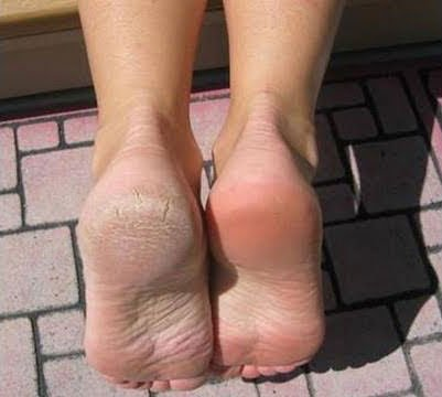 cracked foot