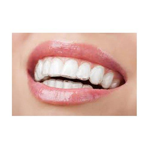apparecchio ortodontico invisibile