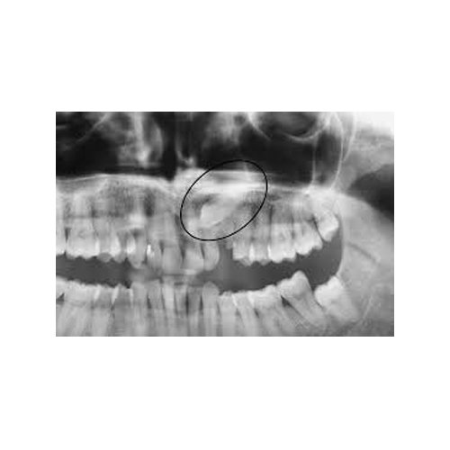 denti inclusi
