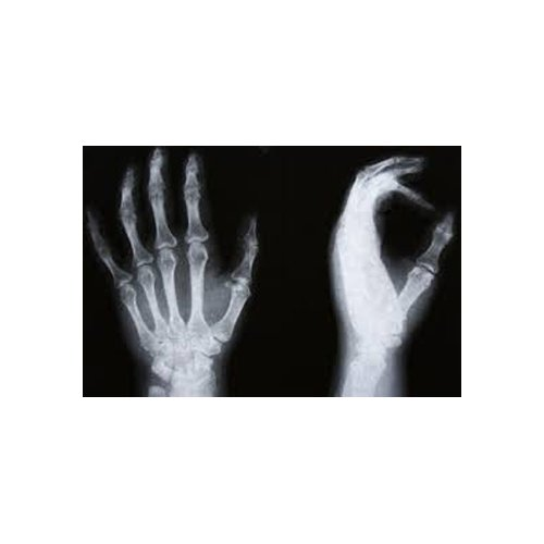 radiografia mano e polso