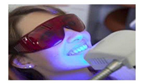 laser sbiancamento denti