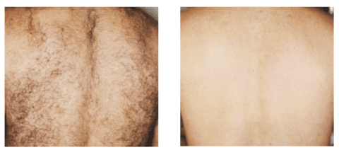Complete hair removal