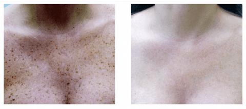 Reducing skin blemishes