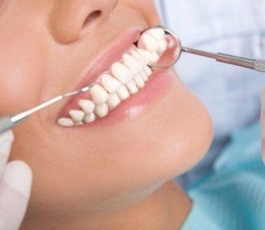 igiene orale, protesi dentarie, denti bianchi