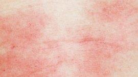 patologie allergiche della cute, rinite, cura asma bronchiale