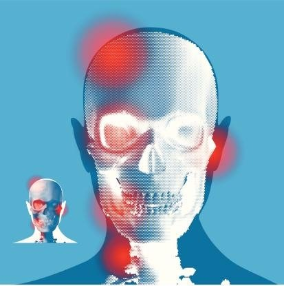analisi occlusione dentale