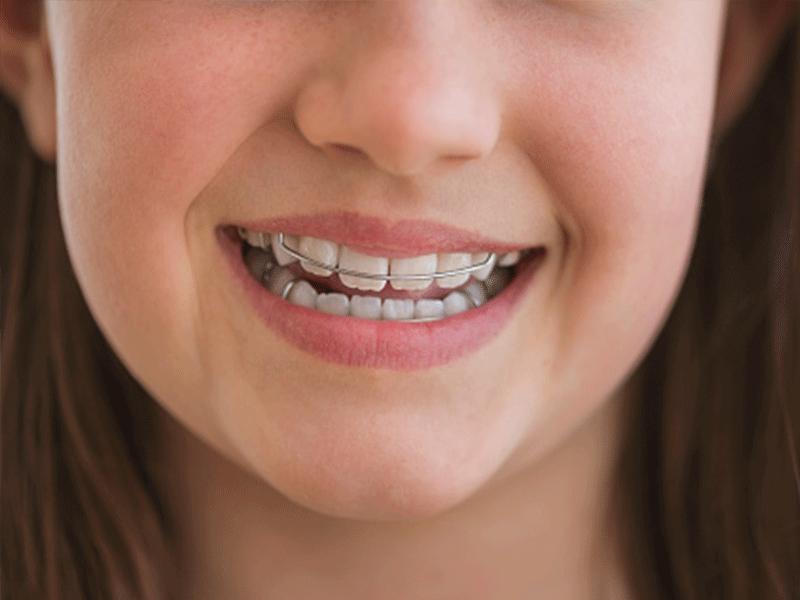 ortodonzia-fissa-e-mobile