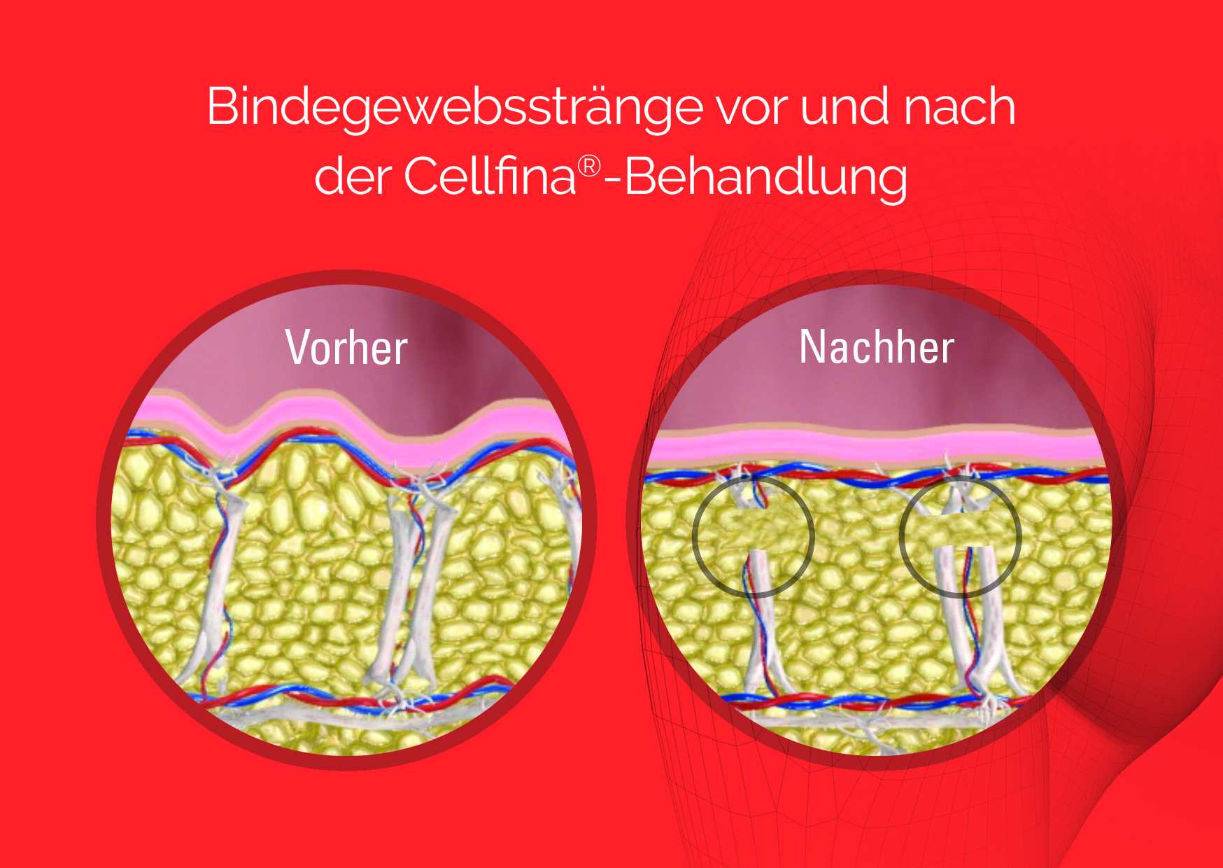Grafische Darstellung von Bindegewebssträngen vor und nach der Cellfina Behandlung