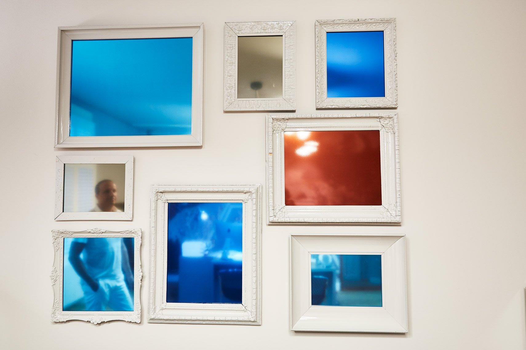 Bilder an der Wand der Liposuktionspraxis in München