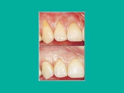 Terapia del parodonto
