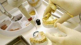 Studio Dentistico Associato Dott. E. Bonora e S. Bonora, Arco (TN), incapsulamenti