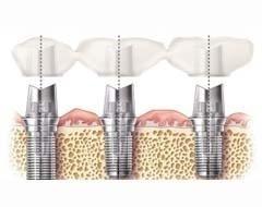 implantologia orale