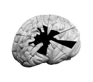 cervello danneggiato