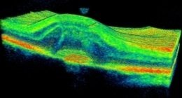 degenerazione maculare senile