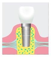 dental implants Olean NY