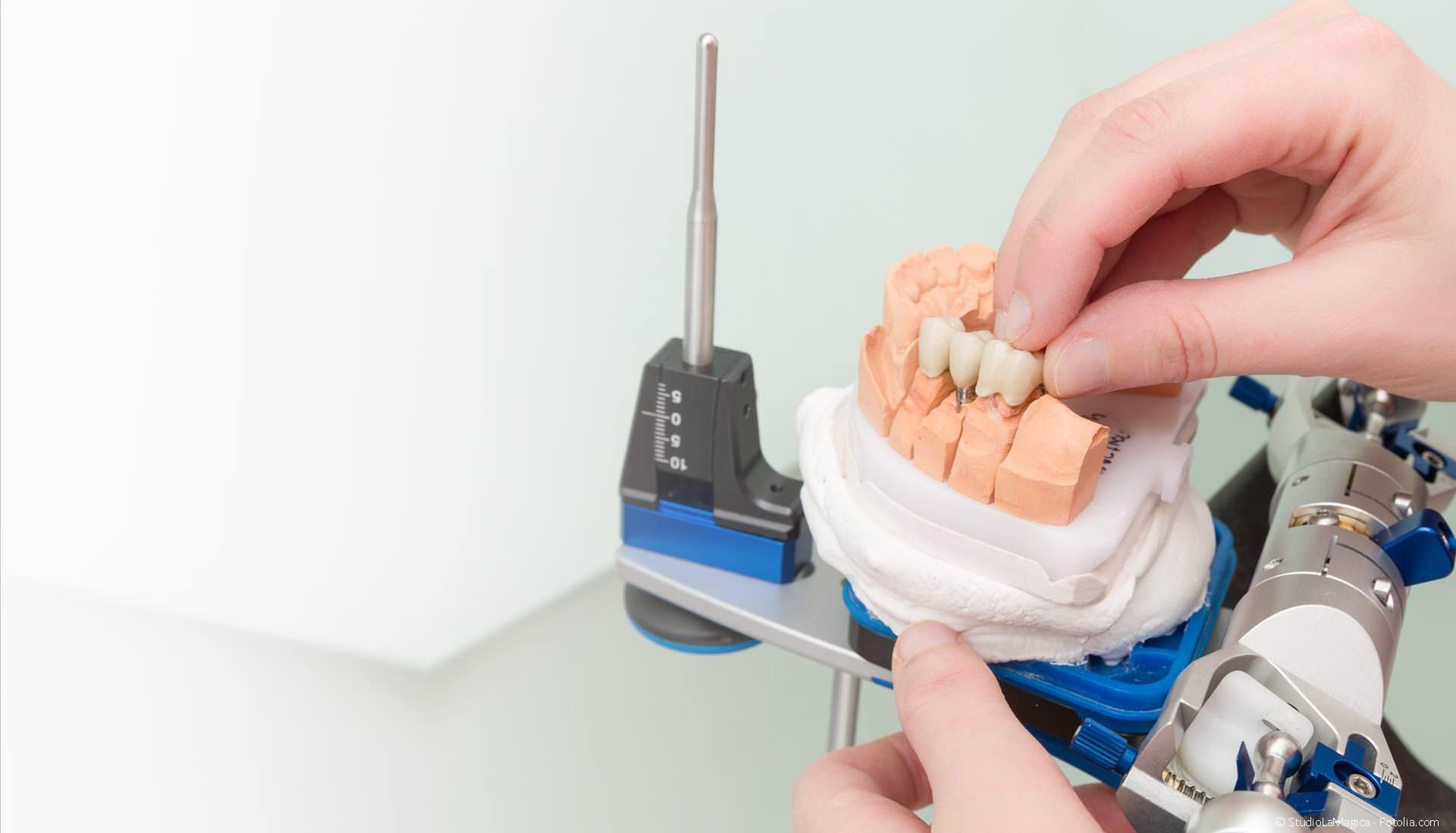 Zahntechnik: Zahnersatz-Herstellung im Dentallabor