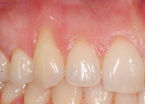 cura patologie gengivali, miglioramento armonia dentale, interventi dentali