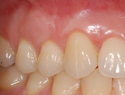 cure gengivali, trattamenti per gengive, interventi dentali