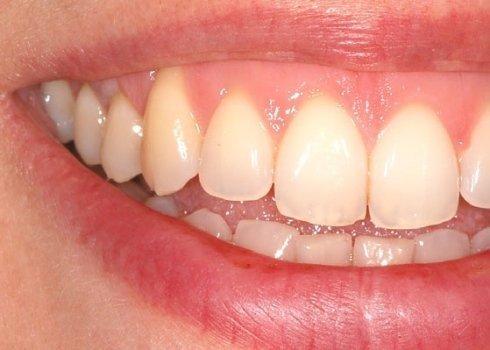 intrventi su apparato dentale, cura patologie gengivali, soluzioni per gengive sane