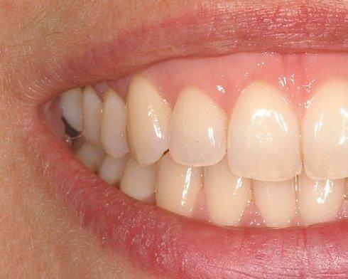 cure per denti, trattamenti chirurgici dentali, chirurgia muco-gengivale