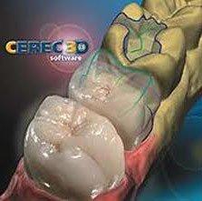 tecnica innovativa per denti, tecnica 3D per denti, costruzione computerizzata corone