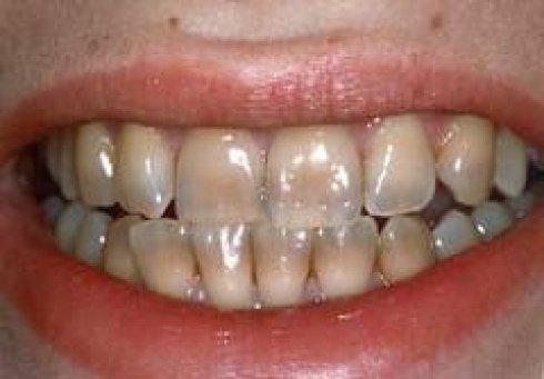 trattamento per denti macchiati, denti da sbiancare, pulizia dentale