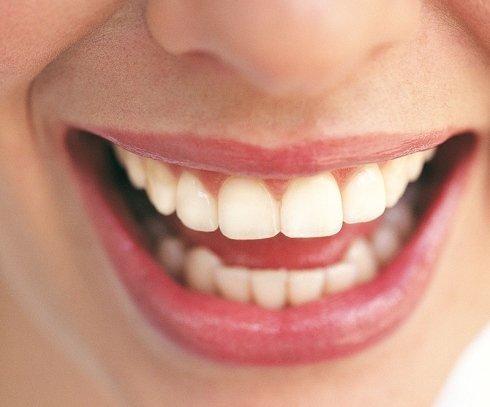 sbiancamento denti, denti sani, denti lucenti