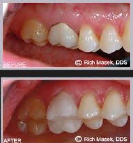 impronte dentali, diagnosi dentale, strumenti 3D per denti