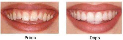 denti sani, denti forti, denti curati