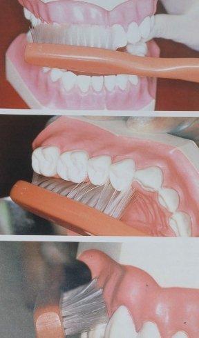 pulizia dentale, prevenzione orale, igiene dentale