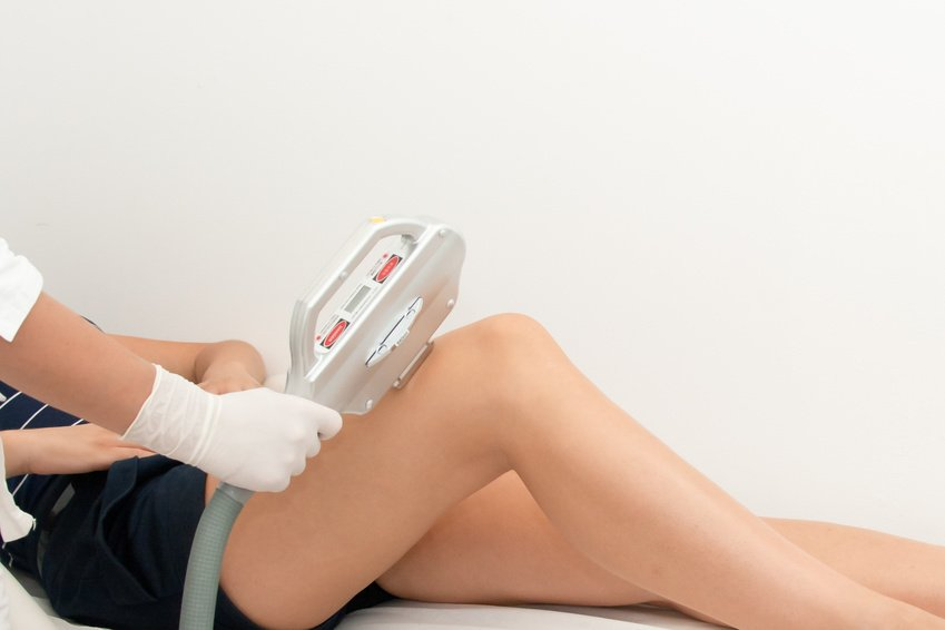 laser hair removal benefits