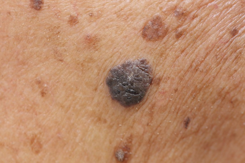 mole removal