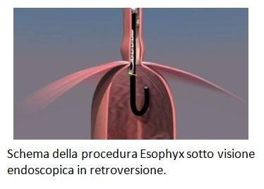 Schema della procedura Esophyx sotto visione endoscopica in retroversione.
