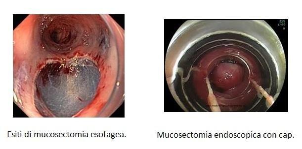 Mucosectomia esofagea ed endoscopica