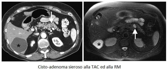 Cisto-adenoma sieroso alla TAC ed alla RM