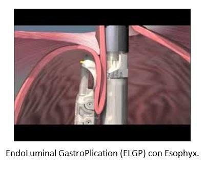 EndoLuminal GastroPlication (ELGP) con Esophyx