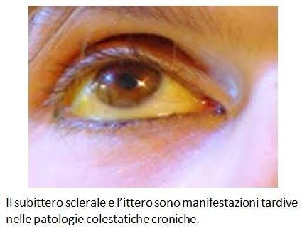 Il subittero sclerale e l'ittero sono manifestazioni tardive nelle patologie colestatiche croniche