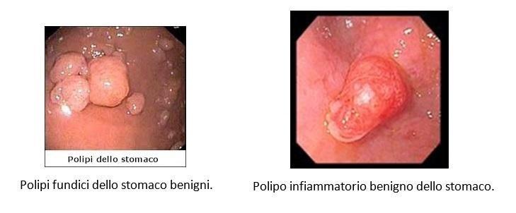 Polipi dello stomaco