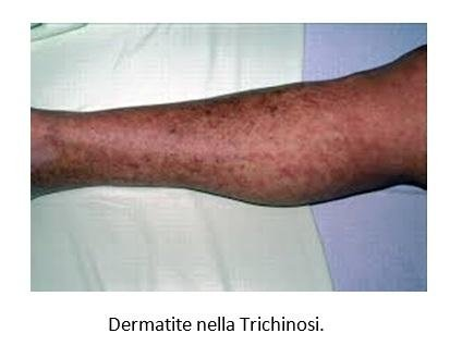 Dermatite nella Trichinosi