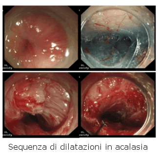 Dilatazioni endoscopiche