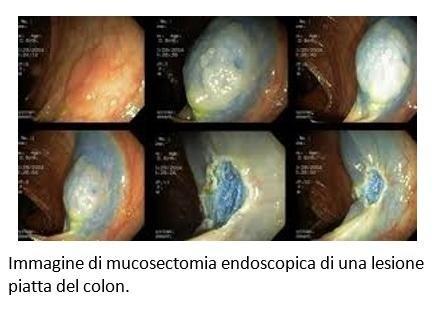 Immagine di mucosectomia endoscopica di una lesione piatta del colon