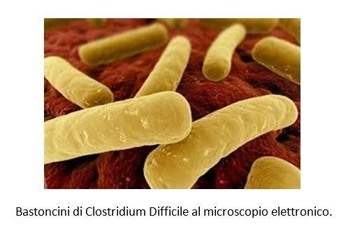 Bastoncini di Clostridium Difficile al microscopio elettronico
