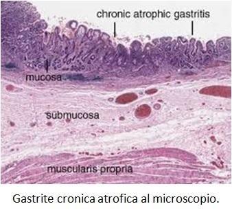 Gastrite cronica atrofica al microscopio