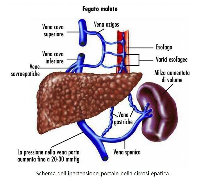 dieta per pazienti con cirrosi epatica