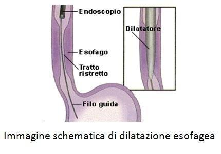 Schema di dilatazione esofagea
