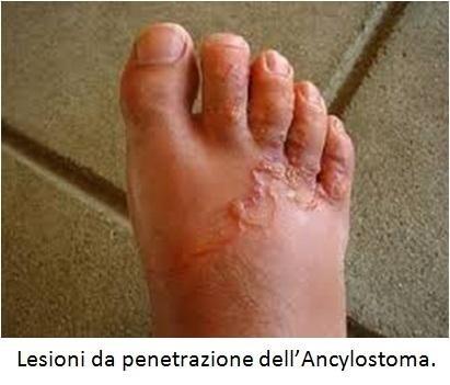 Lesioni da penetrazione dell'Ancylostoma