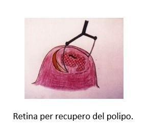 Retina per recupero del polipo